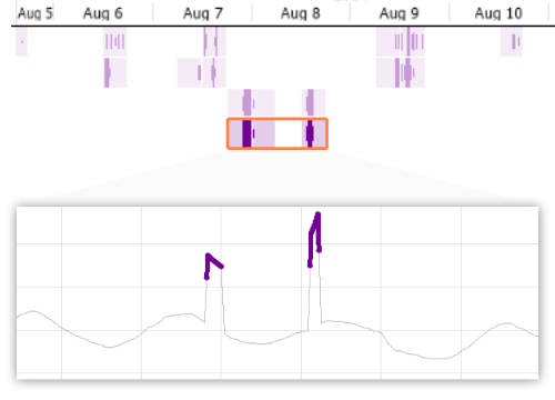 Time series anomaly detection in Visplore